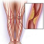 pijn in knieholte bij opstaan