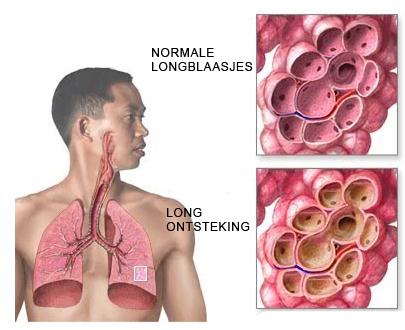 Pijn longen hoesten
