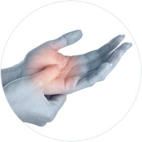 pijnlijke-hand