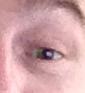 pijnlijke ogen