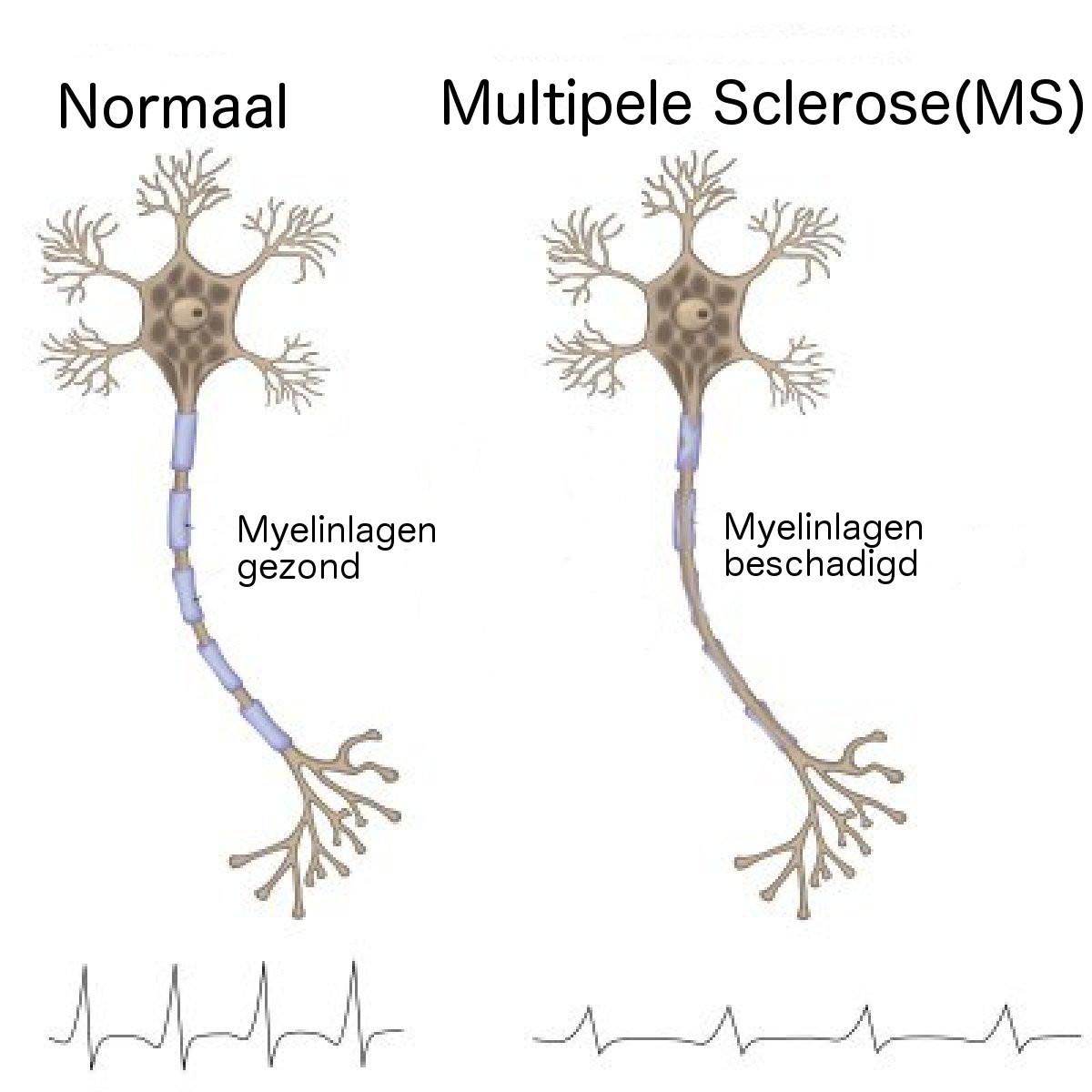 Multipele Sclerose